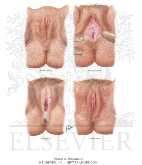 Lesions of the vulva
