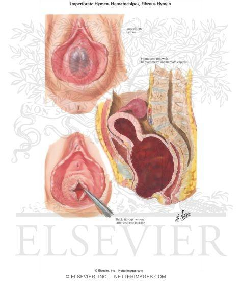 Hymen Hematocolpos Fibrous Hymen Hymenal Stenosis Hematometra
