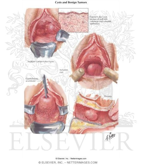 Cysts and Benign Tumors Vaginal Cysts