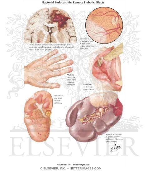 Bacterial Endocarditis Signs Bacterial Endocarditis