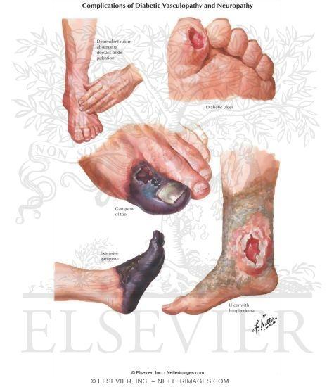 Image result for EFEK DIABETES
