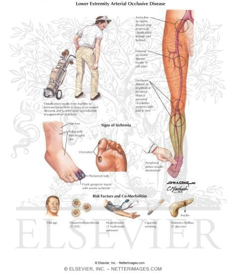 Lower Extremity Arterial Occlusive Disease
