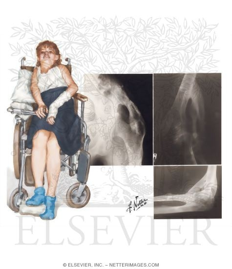 the signs and symptoms and cause of fibrodysplasia ossificans progressiva Prevalence of fibrodysplasia ossificans progressiva (fop) in france: an estimate  based on a record linkage of  orphanet journal of rare diseases201712:123.