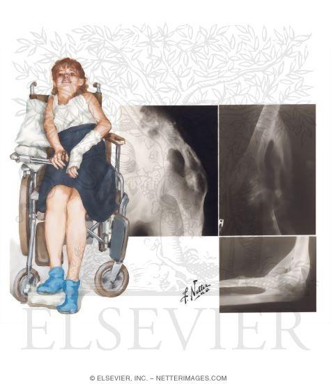 Illustration of Fibrodysplasia (Myositis) Ossificans Progressiva from the Netter Collection