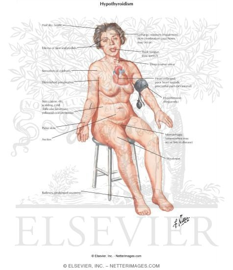 Illustration of Primary and Secondary Adult Myxedema Hypothyroidism from the Netter Collection