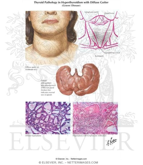 Thyroid Pathology in Diffuse Hyperthyroidism (Graves' Disease)