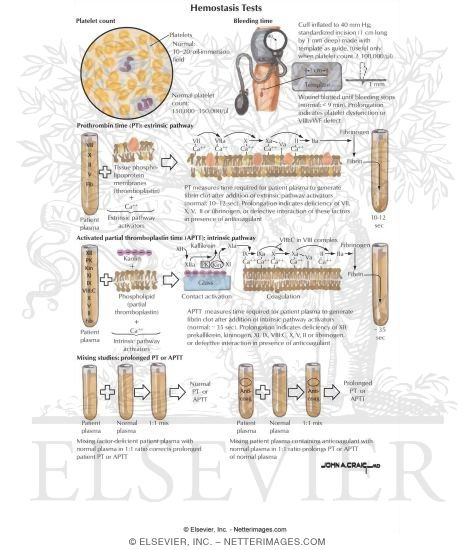 Illustration of Hemostasis Tests from the Netter Collection