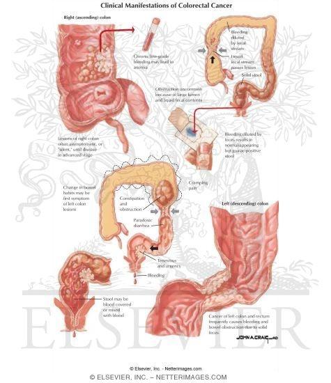 cancer colorectal manifestations)