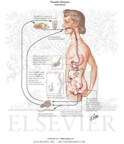enterobius vermicularis és oxyuryiasis)