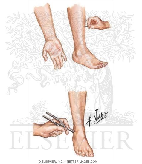 ... Sensory Modalities In a Peripheral Neuropathy - Netter Medical Images