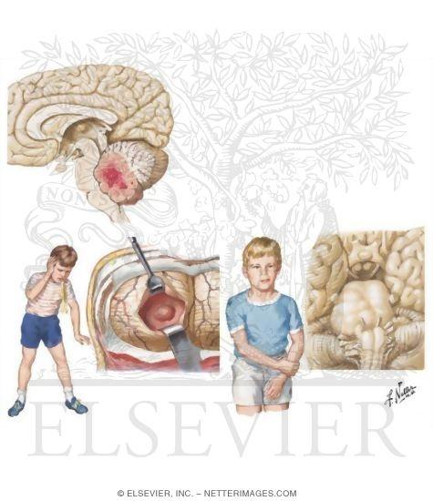 brain tumors in children