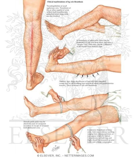 Deep vein thrombosis research papers