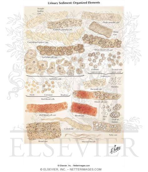Sediment: Organized Elements