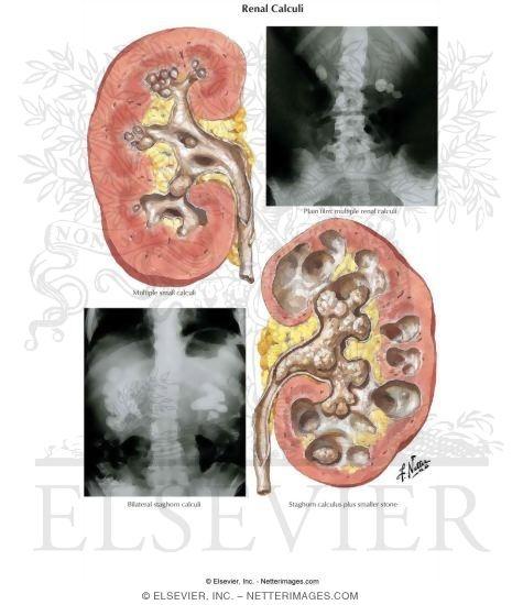 renal calculi, Skeleton