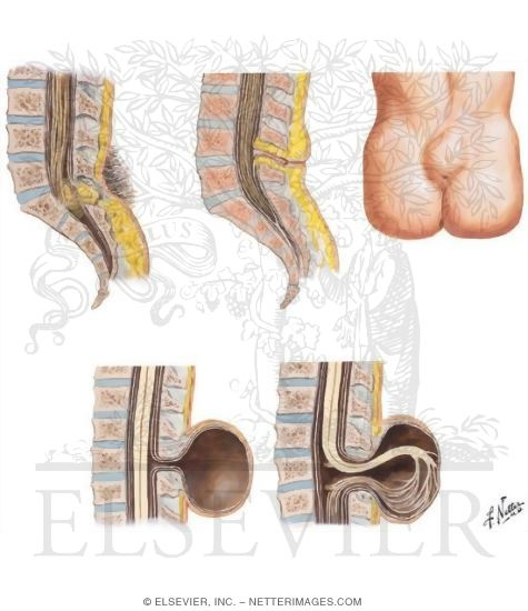 spinal defects