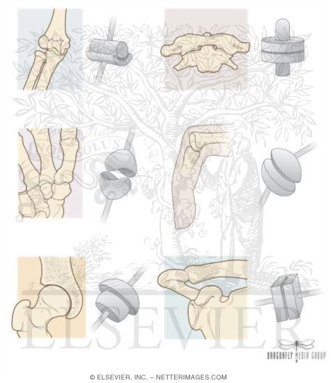 System Types Of Synovial Joints