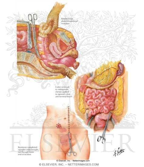 Ulcerative Colitis: Ileostomy and Subtotal Colectomy, and ...