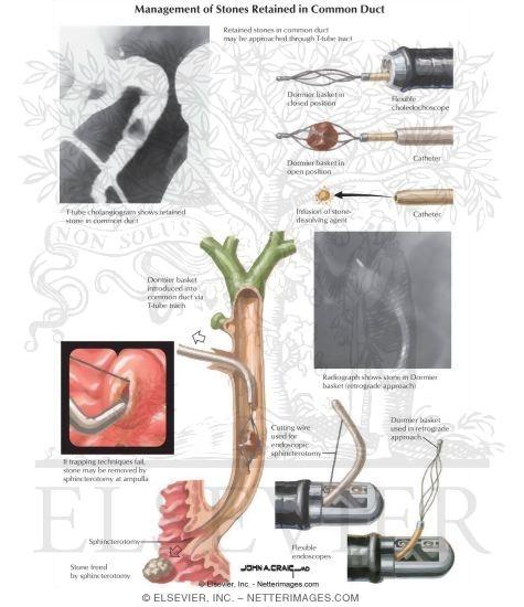 and cholangitis: management of stones, Skeleton