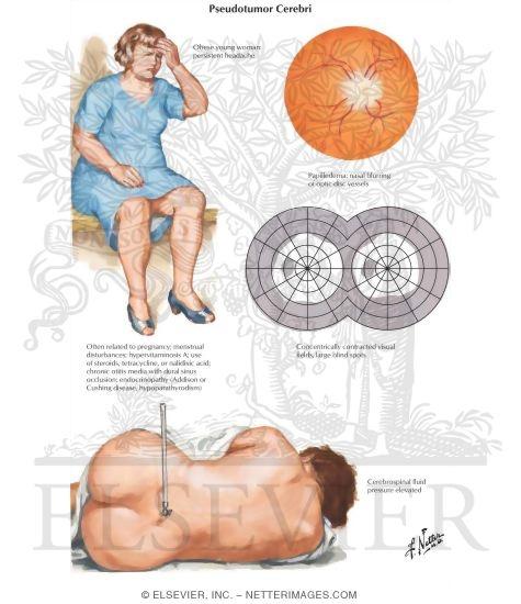 Utilizando 7 síntomas de alta presión arterial estrategias como los profesionales