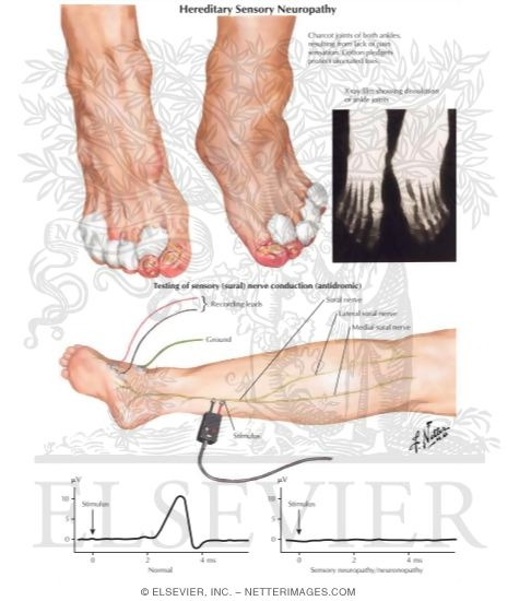 Hereditary sensory and autonomic neuropathies Hereditary motor neuropathy