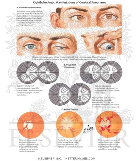 Ophthalmologic Manifestations of Cerebral Aneurysms