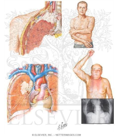 and Superior Vena Cava Syndromes
