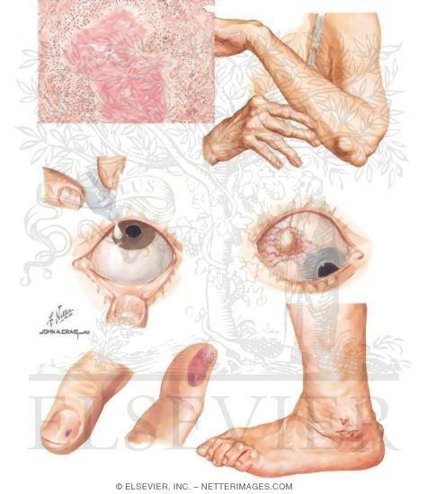 rheumatoid arthritis paper
