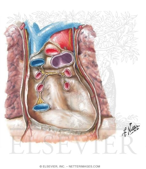 Illustration of Pericardial Sac With Heart Removed: Anterior View from the Netter Collection