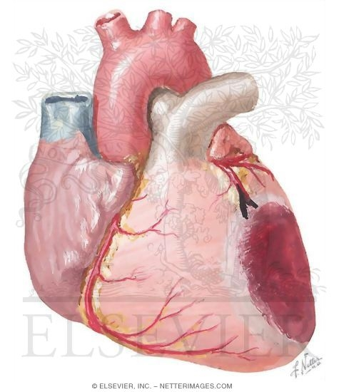 The American Journal of Cardiology   Elsevier