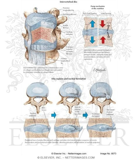 Process of Intervertebral Disc Herniation