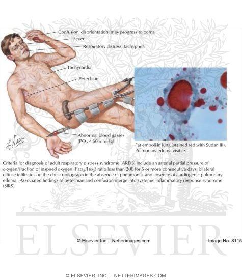 Respiratory Distress Syndrome (Fat Embolism Syndrome)