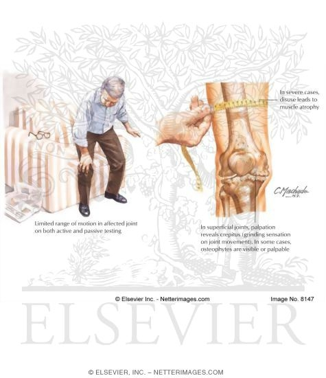 Clinical Findings In Osteoarthritis (OA)