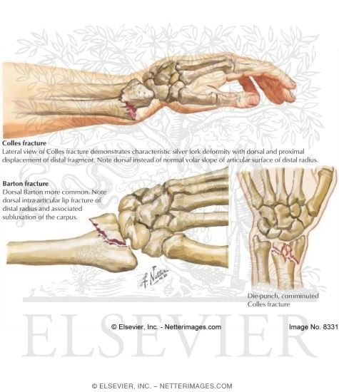 Colles fracture anatomy