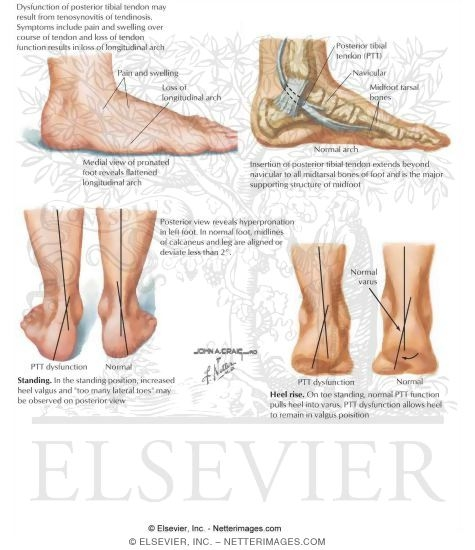 Posterior Tibial Dysfunction