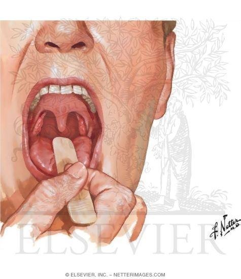 Cavity and Oropharynx