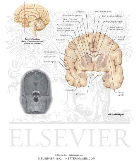 Coronal Sections Through the Forebrain: Head of Caudate Nucleus ...