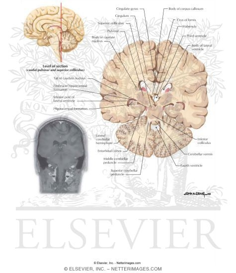 Coronal Sections Through the Forebrain: Caudal Pulvinar and Superior ...