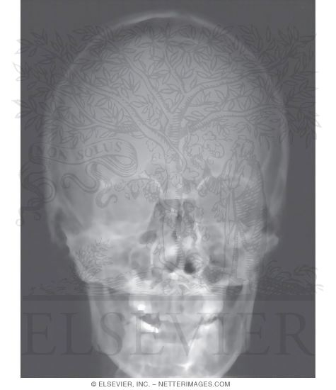 Illustration of Skull: Anteroposterior Radiograph from the Netter Collection