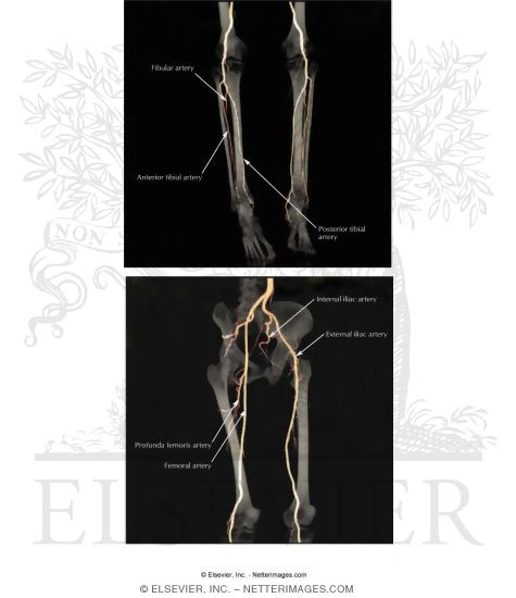 Angiograms of arteries of the lower limb ct angiograms of arteries of the lower limb sciox Image collections