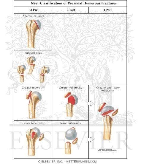 Neer Classification Of Proximal Humerus Fractures