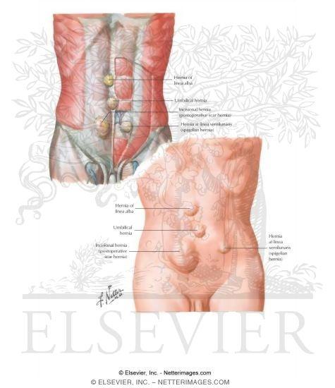 hernia iv - ventral hernia, Skeleton