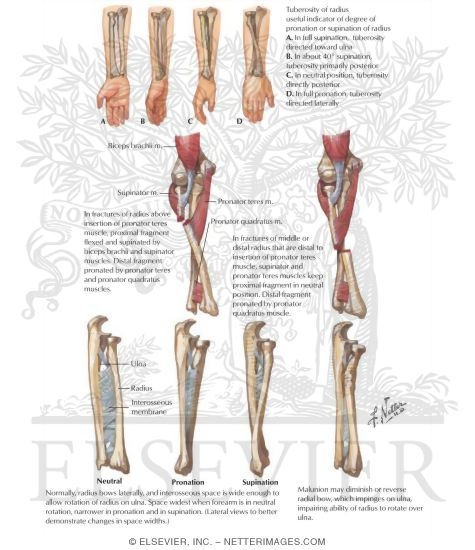 Considerations In Fracture Of Forearm Bones