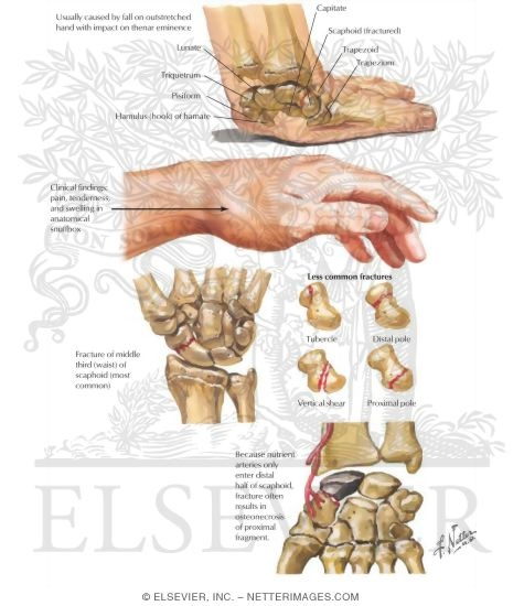 Fracture of the Scaphoid