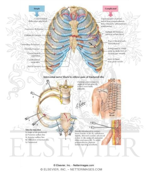 Thoracic Cage Injuries