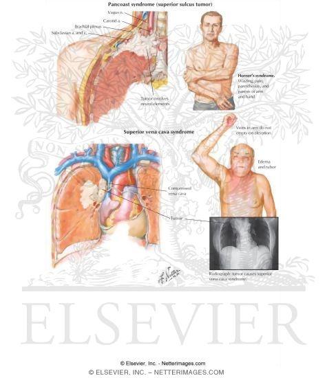 Pancoast And Superior Vena Cava Syndromes