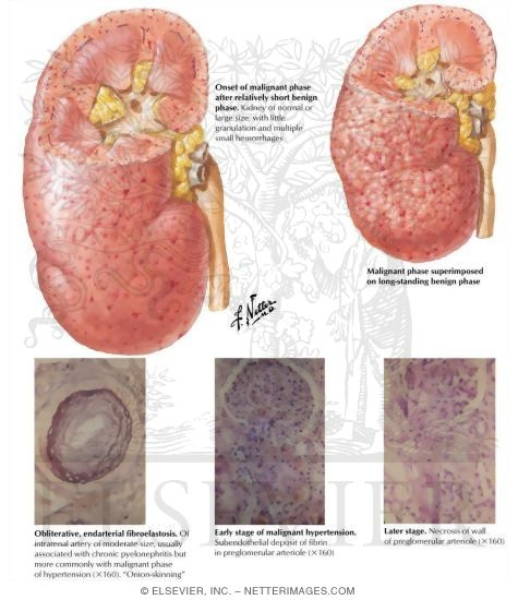 Malignant Phase of Essential Hypertension: Renal Pathology
