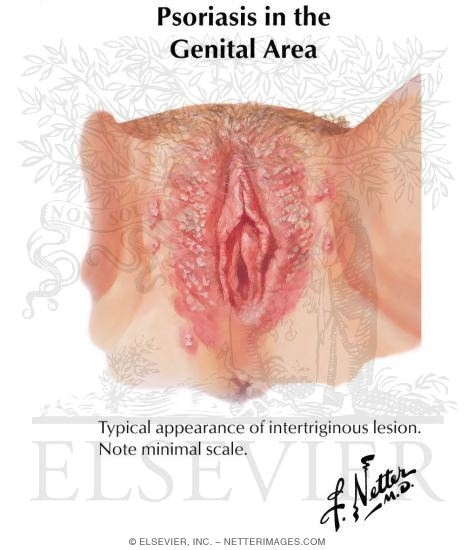 pagets disease of the vulva picture