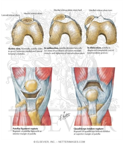 Of The Leg And Knee Subluxation And Dislocation Of Patella