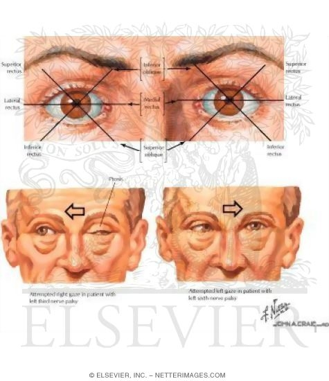 Extraocular Muscles Test General Testing of Extraocular
