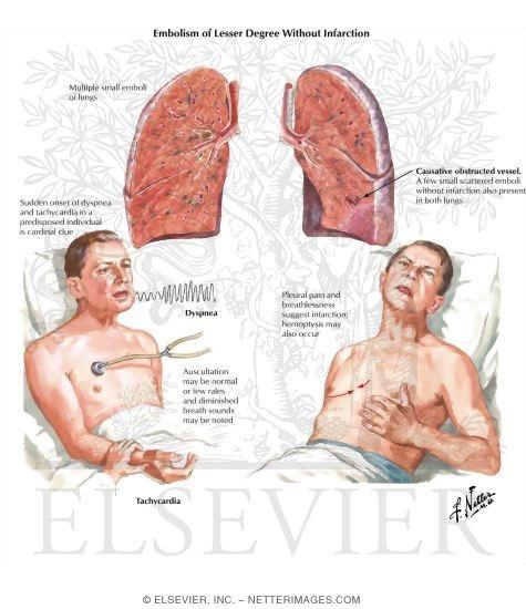 pulmonary embolism, Skeleton